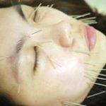 小顔を目指す人は顔面に鍼(はり)を打ちます。